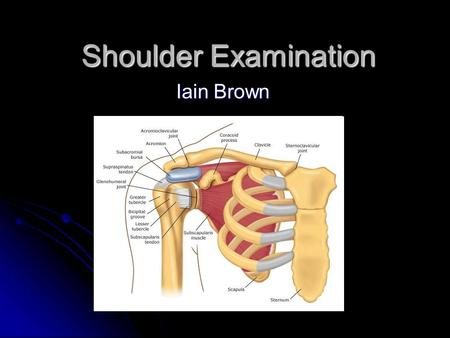 Shoulder Examination Iain Brown. The Exam! Pathology Young – Instability Young – Instability Middle age- Middle age- Frozen shoulder, Calcific Tendonitis.