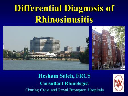 Differential Diagnosis of Rhinosinusitis Hesham Saleh, FRCS Consultant Rhinologist Charing Cross and Royal Brompton Hospitals.