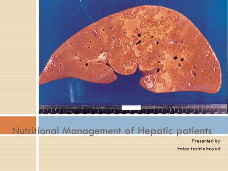 Presented by Faten farid elsayed Nutritional Management of Hepatic patients.