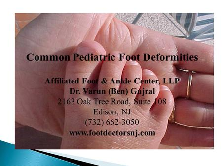 Common Pediatric Foot Deformities Affiliated Foot & Ankle Center, LLP Dr. Varun (Ben) Gujral 2163 Oak Tree Road, Suite 108 Edison, NJ (732) 662-3050 www.footdoctorsnj.com.