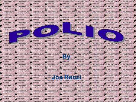 By Joe Renzi. Index 1Home 2Index 3Polio History 4Causes of Polio 5How the Polio Virus Attacks 6Three Types of Polio: Type I Spinal Polio 7Three Types.