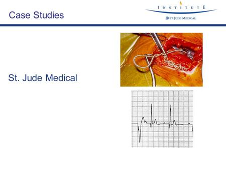 Folie 1, V 1.1 /TK ECGs St. Jude Medical Case Studies.