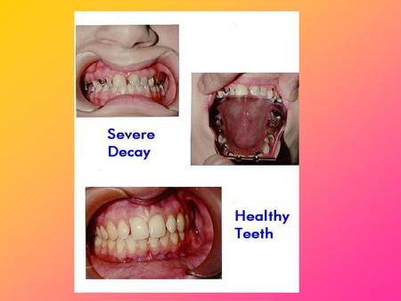 Periodontal/Gum Disease Periodontal/gum diseases are serious infections that, left untreated, can lead to tooth lossPeriodontal/gum diseases are serious.