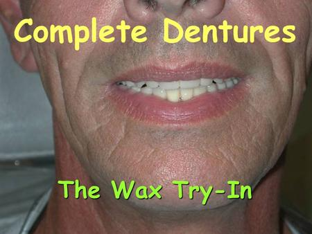 Complete Dentures The Wax Try-In. Introduction Goals: Evaluate and finalizeEvaluate and finalize the anterior esthetics. Verify the vertical dimension.Verify.