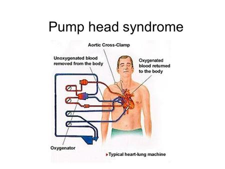 Pump head syndrome. The Heart Valves 1. What is the function of the heart? To pump blood around the body so the cells can receive oxygen and food and.