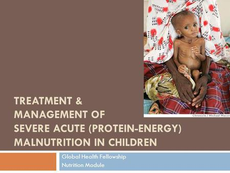 TREATMENT & MANAGEMENT OF SEVERE ACUTE (PROTEIN-ENERGY) MALNUTRITION IN CHILDREN Global Health Fellowship Nutrition Module.