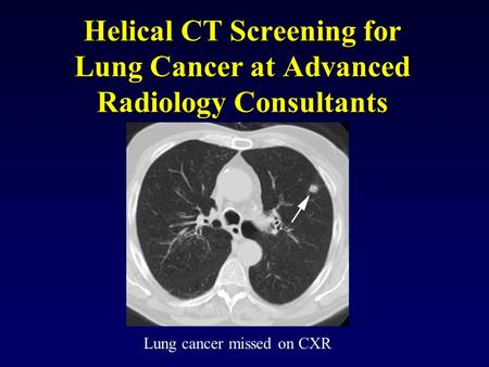 Helical CT Screening for Lung Cancer at Advanced Radiology Consultants Lung cancer missed on CXR.