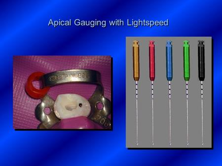 Apical Gauging with Lightspeed. ISO #10 File to working length ISO #10 File to working length.