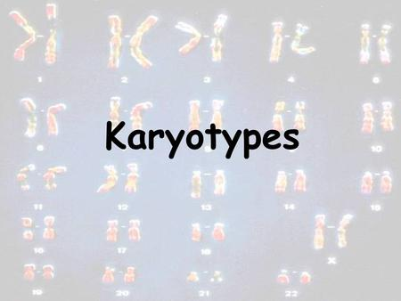Karyotypes. A picture of someones chromosomes Centromere.