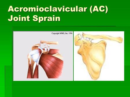 Acromioclavicular (AC) Joint Sprain. What is the AC joint? Its a joint in the shoulder that consists of the lateral end of the clavicle and the acromion.