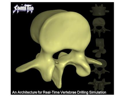 An Architecture for Real-Time Vertebrae Drilling Simulation.