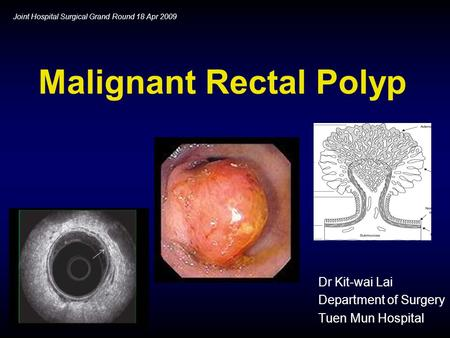 Malignant Rectal Polyp Dr Kit-wai Lai Department of Surgery Tuen Mun Hospital Joint Hospital Surgical Grand Round 18 Apr 2009.