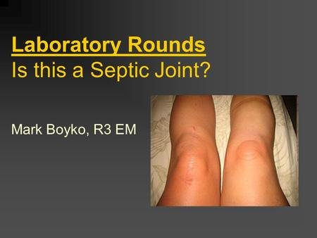 Laboratory Rounds Is this a Septic Joint? Mark Boyko, R3 EM.
