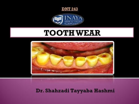 Dr. Shahzadi Tayyaba Hashmi DNT 243. Definition: ' Tooth wear is defined as loss of tooth tissue due to causes other than caries ' Types:  Physiological.