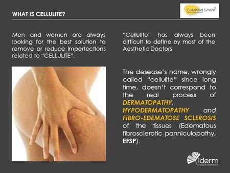 "WHAT IS CELLULITE? Men and women are always looking for the best solution to remove or reduce imperfections related to ""CELLULITE"". ""Cellulite"" has always."