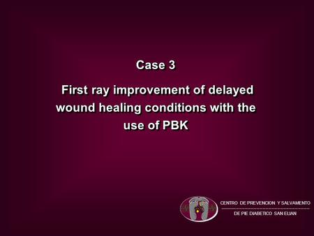Case 3 First ray improvement of delayed wound healing conditions with the use of PBK First ray improvement of delayed wound healing conditions with the.