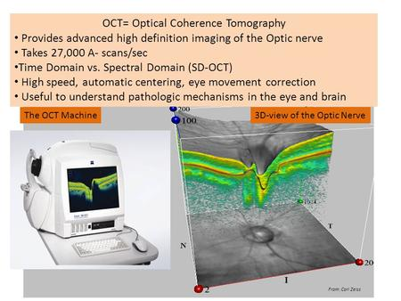 OCT= Optical Coherence Tomography Provides advanced high definition imaging of the Optic nerve Takes 27,000 A- scans/sec Time Domain vs. Spectral Domain.