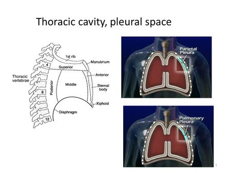 1 Thoracic cavity, pleural space. Conditions requiring chest drainage_1 Air between the pleurae is a pneumothorax Occurs when there is an opening on the.