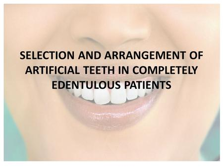 SELECTION AND ARRANGEMENT OF ARTIFICIAL TEETH IN COMPLETELY EDENTULOUS PATIENTS.
