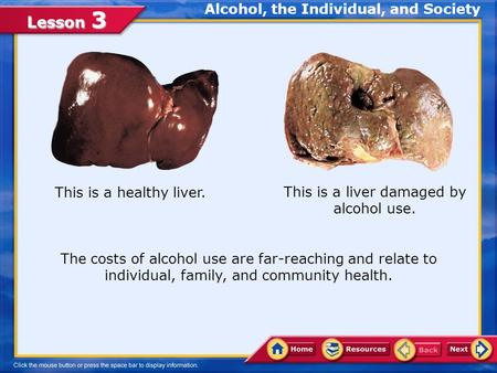 Lesson 3 This is a healthy liver. This is a liver damaged by alcohol use. The costs of alcohol use are far-reaching and relate to individual, family,