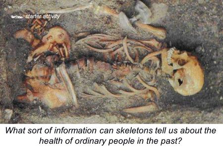  starter activity What sort of information can skeletons tell us about the health of ordinary people in the past?