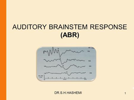 AUDITORY BRAINSTEM RESPONSE (ABR) DR.S.H.HASHEMI 1.