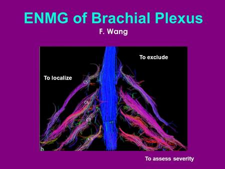 ENMG of Brachial Plexus F. Wang To localize To exclude To assess severity.