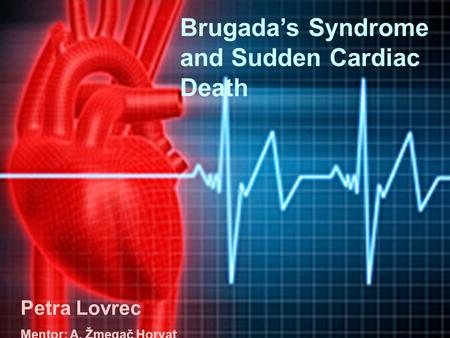Brugada's Syndrome and Sudden Cardiac Death Petra Lovrec Brugada's Syndrome and Sudden Cardiac Death Petra Lovrec Mentor: A. Žmegač Horvat.