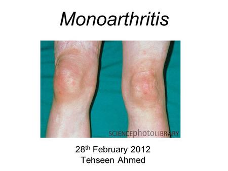 Monoarthritis 28 th February 2012 Tehseen Ahmed. Aims and Objectives Aim –To be able to manage the patient with an acute hot joint Objectives –By the.