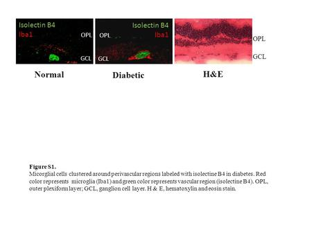 OPL GCL OPL GCL Normal Diabetic Isolectin B4 Iba1 Isolectin B4 Iba1 GCL OPL H&E Figure S1. Micorglial cells clustered around perivascular regions labeled.