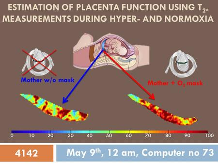 ESTIMATION OF PLACENTA FUNCTION USING T 2* MEASUREMENTS DURING HYPER- AND NORMOXIA May 9 th, 12 am, Computer no 73 Mother + O 2 mask Mother w/o mask 4142.