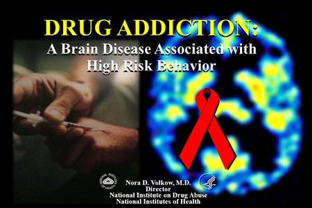 DRUG ADDICTION: A Brain Disease Associated with High Risk Behavior DRUG ADDICTION: A Brain Disease Associated with High Risk Behavior Nora D. Volkow, M.D.