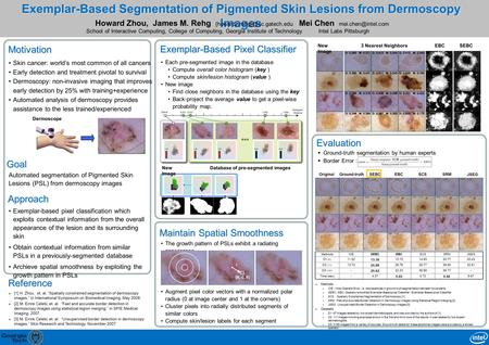 Exemplar-Based Segmentation of Pigmented Skin Lesions from Dermoscopy Images Mei Chen Intel Labs Pittsburgh Approach Motivation Skin.