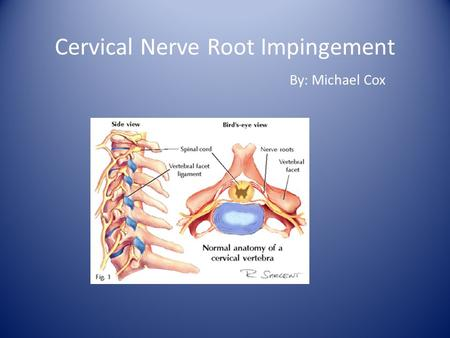 Cervical Nerve Root Impingement By: Michael Cox