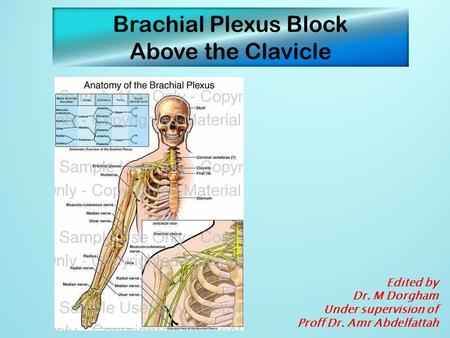 Brachial Plexus Block Above the Clavicle Edited by Dr. M Dorgham Under supervision of Proff Dr. Amr Abdelfattah.