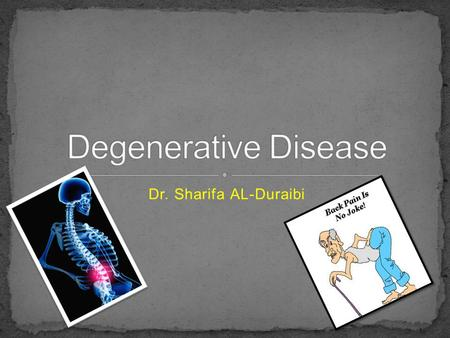 Dr. Sharifa AL-Duraibi. Degeneration of one or more intervertebral disc(s) of the spine. Disc degeneration is a disease of aging, and though for most.