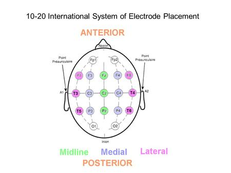 10-20 International System of Electrode Placement.