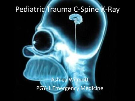 Pediatric Trauma C-Spine X-Ray Ashlea Wilmott PGY-1 Emergency Medicine.