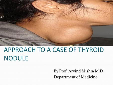 APPROACH TO A CASE OF THYROID NODULE By Prof. Arvind Mishra M.D. Department of Medicine.