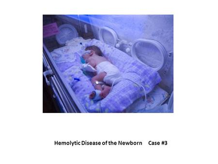 Hemolytic Disease of the Newborn Case #3. Scenario Baby Girl Dae two-day old jaundiced newborn girl sample of her blood is submitted to the Blood Bank.