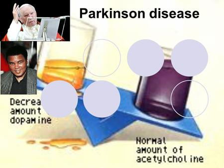 Parkinson disease. Parkinson's disease Parkinson's disease results from the degeneration of dopaminergic neurons in the substantia nigra These neurons.