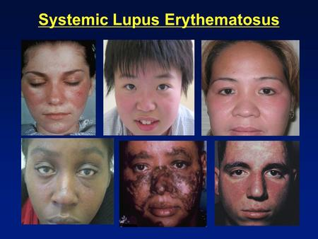Systemic Lupus Erythematosus. Epidemiology of SLE Prevalence - 1/2,000 people Sex - 10:1 female predominance Age at onset 16-55 years:65% (F:M = 10:1)