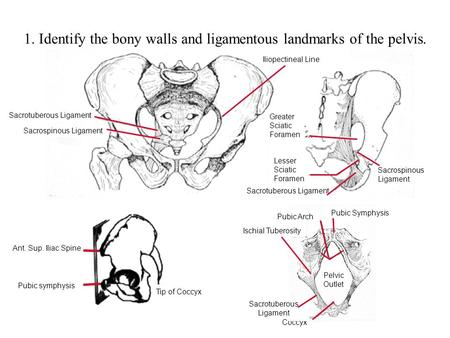 Tip of Coccyx Ant. Sup. Iliac Spine Pubic symphysis 1. Identify the bony walls and ligamentous landmarks of the pelvis. Sacrotuberous Ligament Sacrospinous.