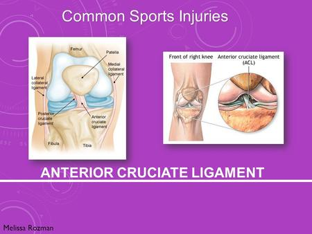 ANTERIOR CRUCIATE LIGAMENT Melissa Rozman Common Sports Injuries.