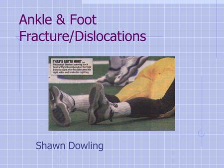 Ankle & Foot Fracture/Dislocations Shawn Dowling.
