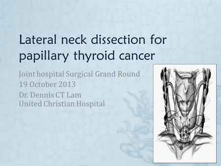 Lateral neck dissection for papillary thyroid cancer