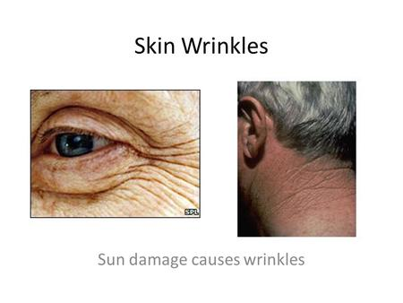 Skin Wrinkles Sun damage causes wrinkles. Wrinkled skin The Sun Skin proteins (Elastin, collagen) Skin proteins (Elastin, collagen) Protection Treatment.