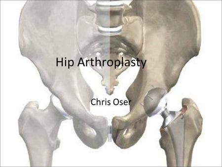 Hip Arthroplasty Chris Oser. Presentation Why hip replacement? How? –Surgery! Different materials Pros and Cons Resurfacing Patient post-op.