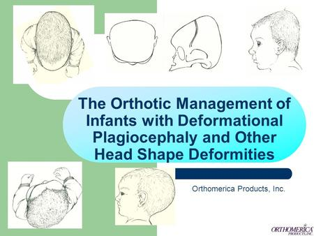 The Orthotic Management of Infants with Deformational Plagiocephaly and Other Head Shape Deformities Orthomerica Products, Inc.