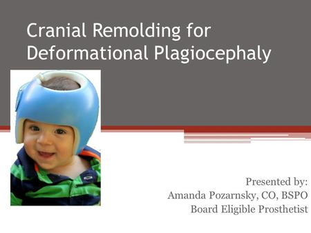 Cranial Remolding for Deformational Plagiocephaly